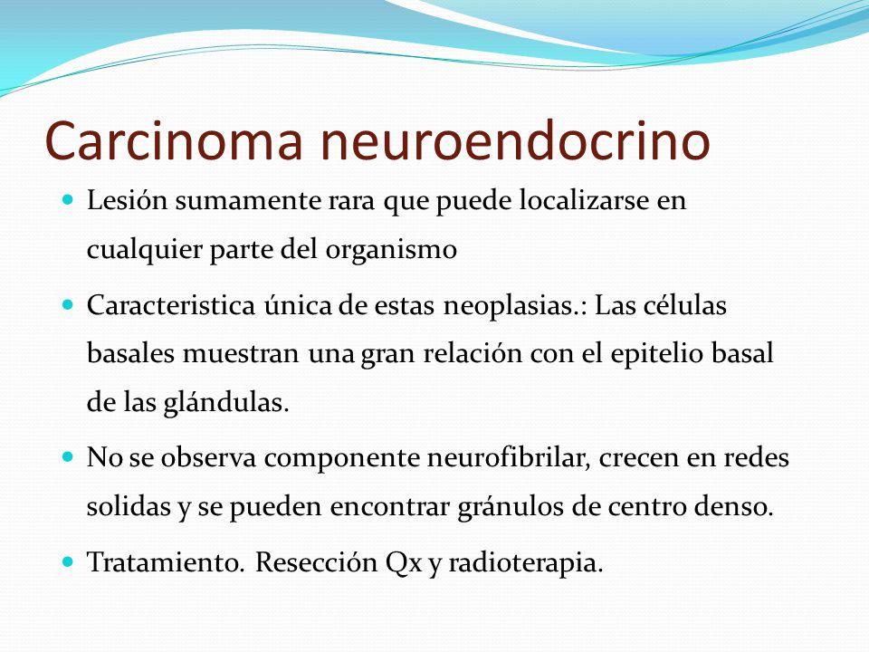 Carcinoma neuroendocrino Lesión sumamente rara que puede localizarse en cualquier parte del organismo Caracteristica única de estas neoplasias.: Las células basales muestran una gran relación con el epitelio basal de las glándulas.