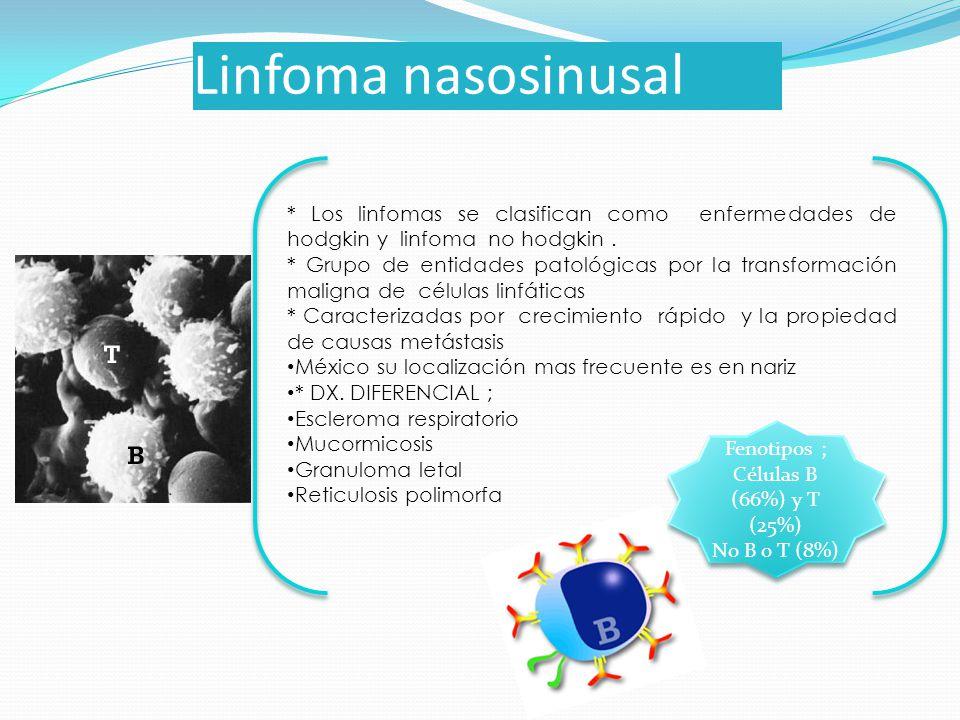 Linfoma nasosinusal * Los linfomas se clasifican como enfermedades de hodgkin y linfoma no hodgkin. * Grupo de entidades patológicas por la transforma