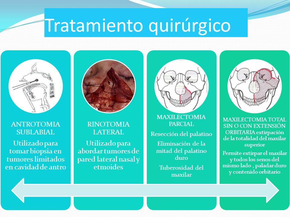 Tratamiento quirúrgico ANTROTOMIA SUBLABIAL Utilizado para tomar biopsia en tumores limitados en cavidad de antro RINOTOMIA LATERAL Utilizado para abordar tumores de pared lateral nasal y etmoides MAXILECTOMIA PARCIAL Resección del palatino Eliminación de la mitad del palatino duro Tuberosidad del maxilar MAXILECTOMIA TOTAL SIN O CON EXTENSIÓN ORBITARIA extirpación de la totalidad del maxilar superior Permite extirpar el maxilar y todos los senos del mismo lado, paladar duro y contenido orbitario
