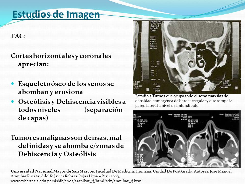Estudios de Imagen TAC: Cortes horizontales y coronales aprecian: Esqueleto óseo de los senos se abomban y erosiona Osteólisis y Dehiscencia visibles