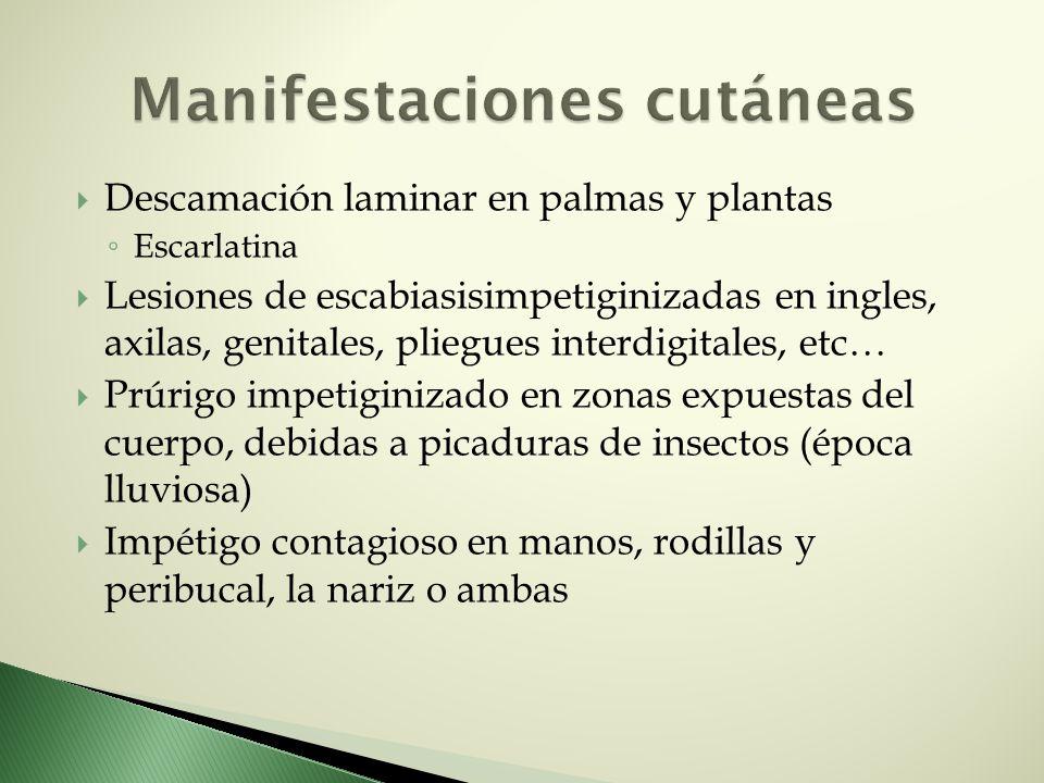 Descamación laminar en palmas y plantas Escarlatina Lesiones de escabiasisimpetiginizadas en ingles, axilas, genitales, pliegues interdigitales, etc…