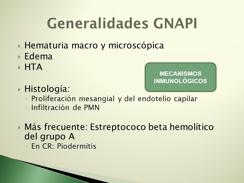 Hematuria macro y microscópica Edema HTA Histología: Proliferación mesangial y del endotelio capilar Infiltración de PMN Más frecuente: Estreptococo b