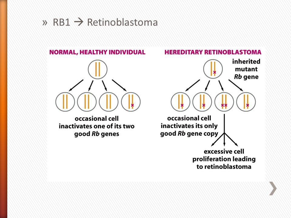 » RB1 Retinoblastoma