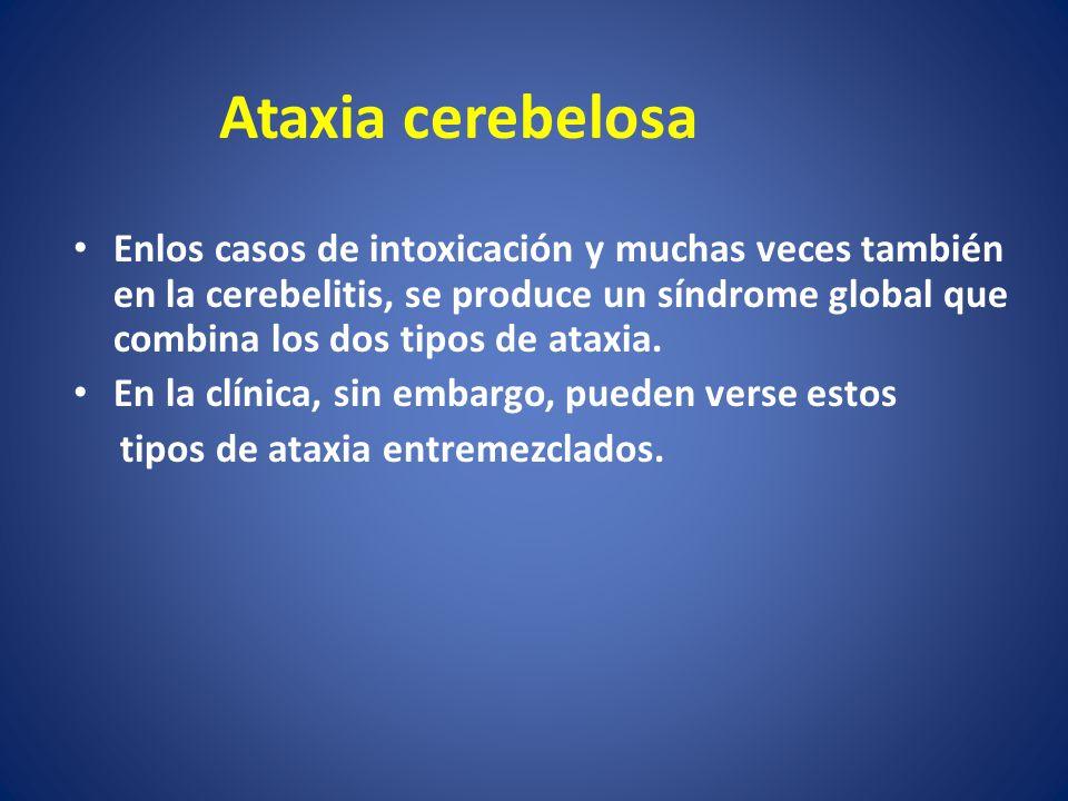 Enlos casos de intoxicación y muchas veces también en la cerebelitis, se produce un síndrome global que combina los dos tipos de ataxia. En la clínica