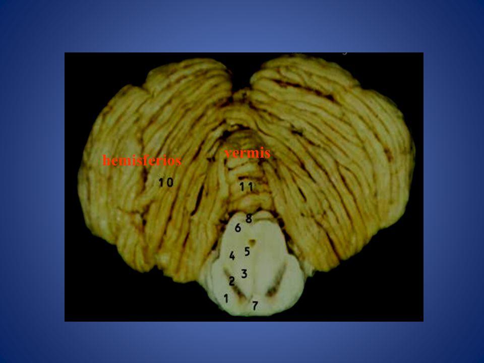Vertigo Si la desviación y el nistagmo son hacia el mismo lado se habla de vértigo armónico .