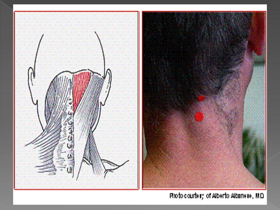 Se origina en la apófisis transversas de las vertebras torácicas de la 6ta a la 10ma.