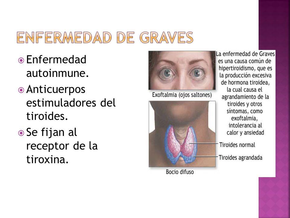 Enfermedad autoinmune. Anticuerpos estimuladores del tiroides. Se fijan al receptor de la tiroxina.