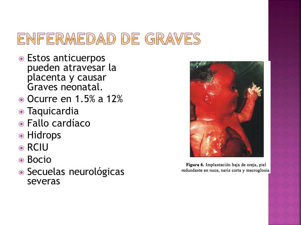 Estos anticuerpos pueden atravesar la placenta y causar Graves neonatal. Ocurre en 1.5% a 12% Taquicardia Fallo cardíaco Hidrops RCIU Bocio Secuelas n