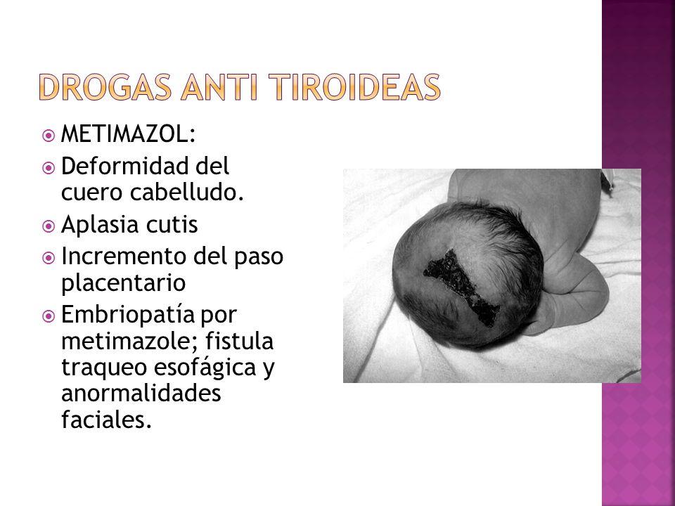 METIMAZOL: Deformidad del cuero cabelludo. Aplasia cutis Incremento del paso placentario Embriopatía por metimazole; fistula traqueo esofágica y anorm
