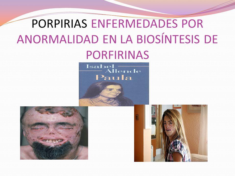 PORPIRIAS ENFERMEDADES POR ANORMALIDAD EN LA BIOSÍNTESIS DE PORFIRINAS