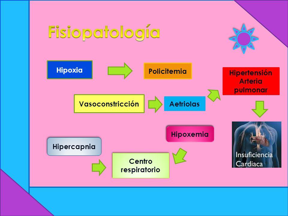 Hipercapnia Hipoxia Policitemia Centro respiratorio Hipoxemia Vasoconstricción Aetriolas Hipertensión Arteria pulmonar