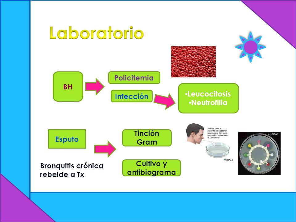 BH Esputo Policitemia Infección Leucocitosis Neutrofilia Bronquitis crónica rebelde a Tx Tinción Gram Cultivo y antibiograma