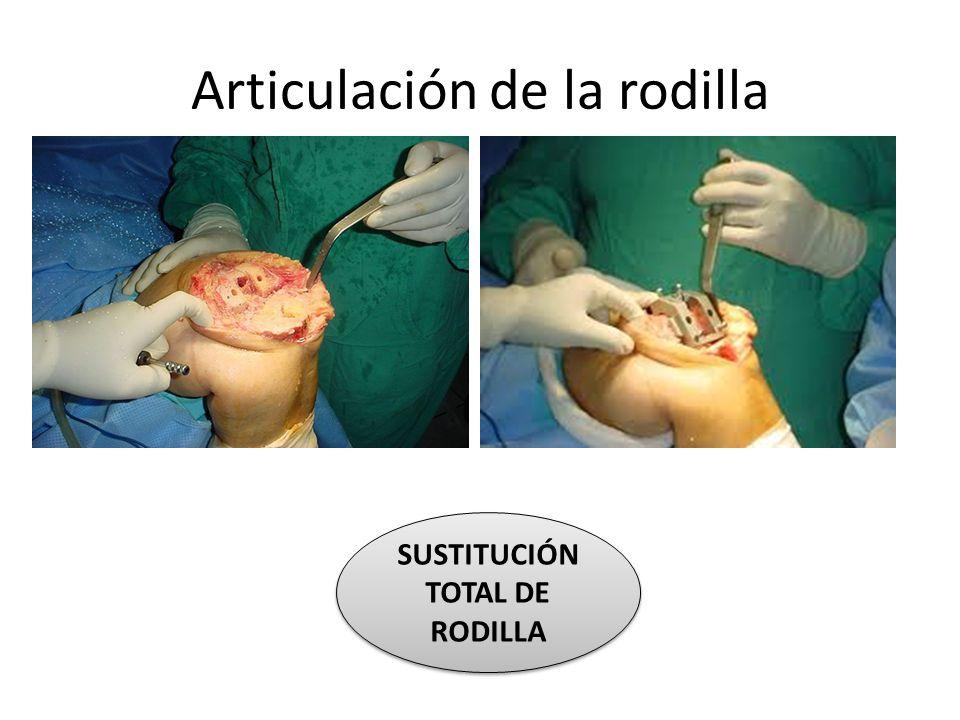 Articulación de la rodilla SUSTITUCIÓN TOTAL DE RODILLA