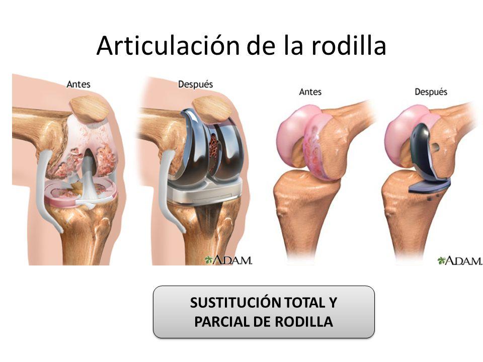 Articulación de la rodilla SUSTITUCIÓN TOTAL Y PARCIAL DE RODILLA