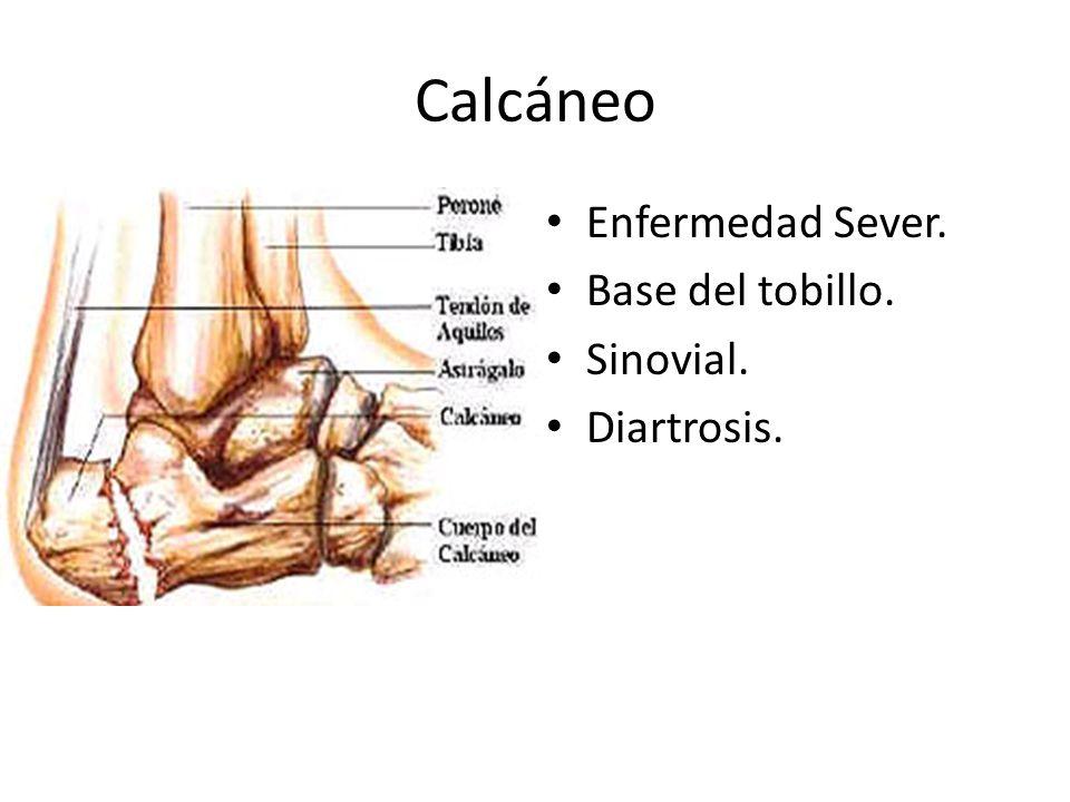 Calcáneo Enfermedad Sever. Base del tobillo. Sinovial. Diartrosis.