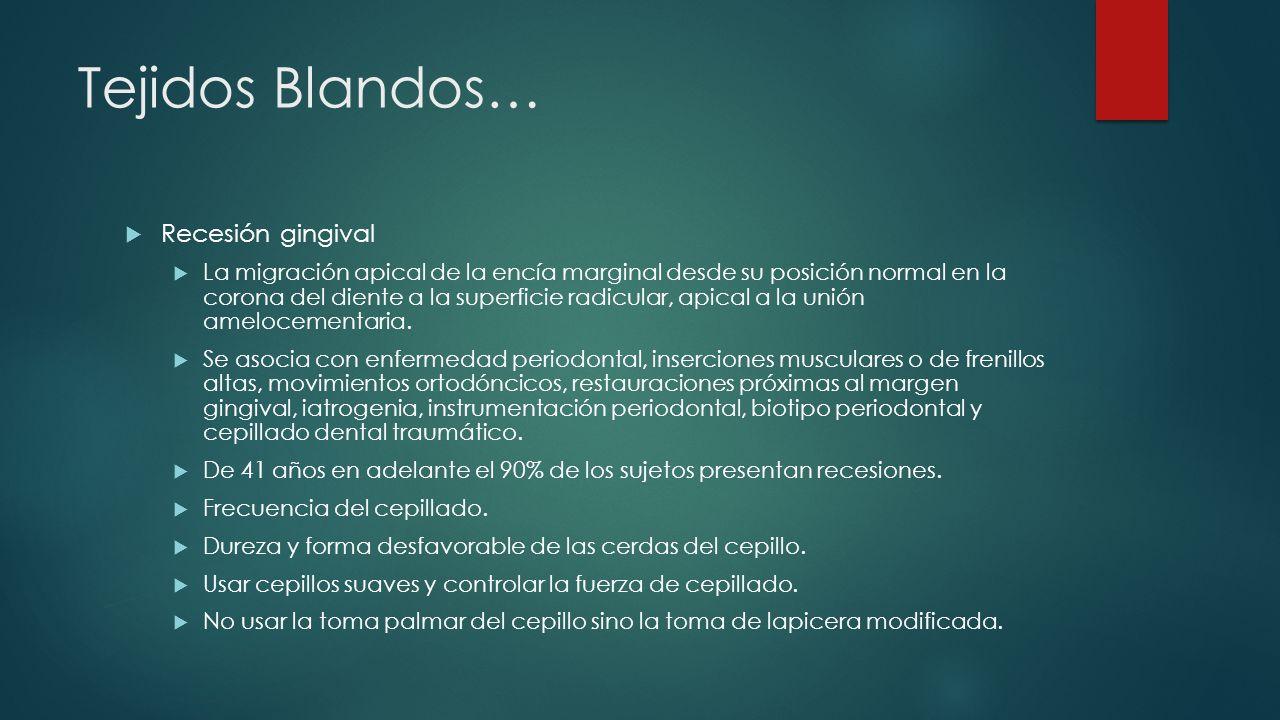 Tejidos Blandos… Recesión gingival La migración apical de la encía marginal desde su posición normal en la corona del diente a la superficie radicular