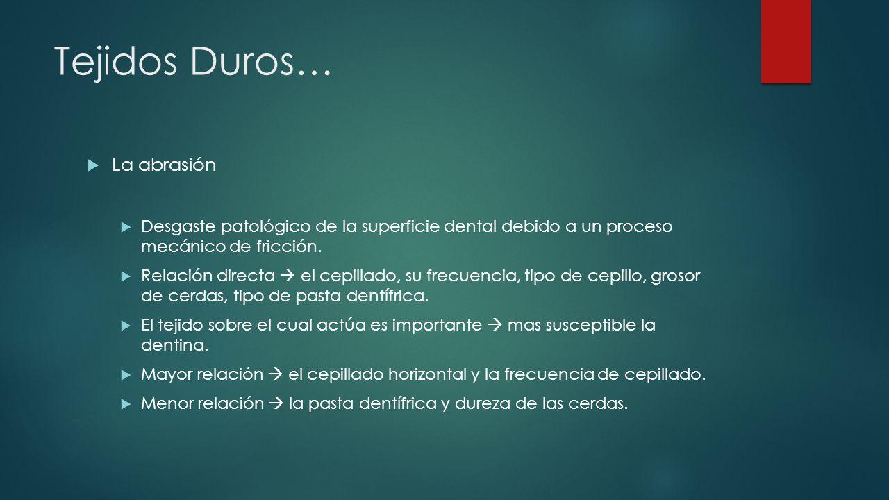 Tejidos Duros… La abfracción Son aquellos defectos en cuña que aparecen en la unión amelocementaria.