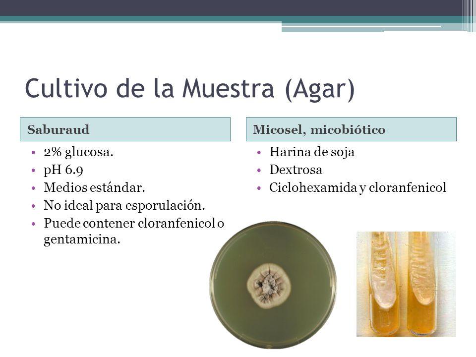 Cultivo de la Muestra (Agar) SaburaudMicosel, micobiótico 2% glucosa. pH 6.9 Medios estándar. No ideal para esporulación. Puede contener cloranfenicol