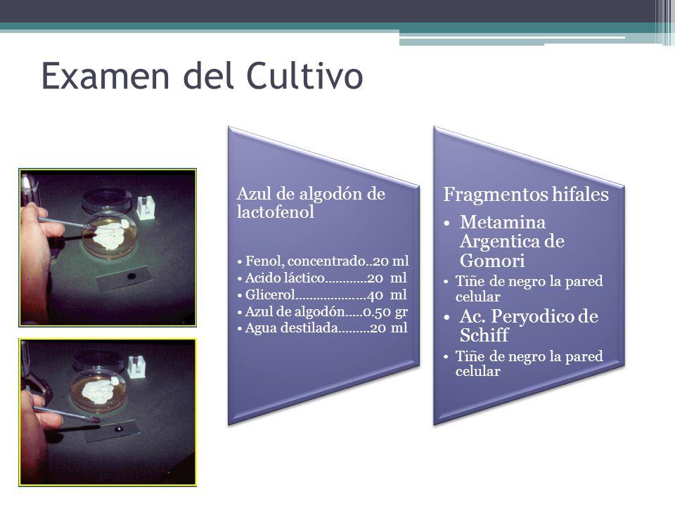 Examen del Cultivo Cardaje Azul de algodón de lactofenol Fenol, concentrado..20 ml Acido láctico............20 ml Glicerol....................40 ml Az