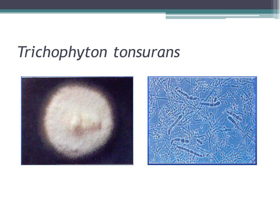 Trichophyton tonsurans