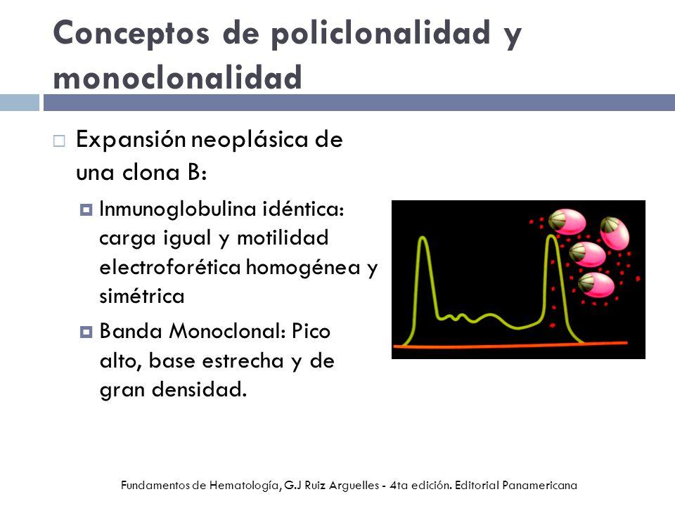 Conceptos de policlonalidad y monoclonalidad Expansión neoplásica de una clona B: Inmunoglobulina idéntica: carga igual y motilidad electroforética homogénea y simétrica Banda Monoclonal: Pico alto, base estrecha y de gran densidad.