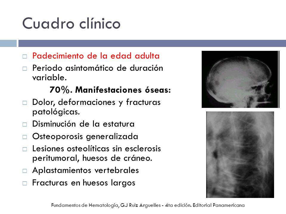 Cuadro clínico Padecimiento de la edad adulta Periodo asintomático de duración variable. 70%. Manifestaciones óseas: Dolor, deformaciones y fracturas