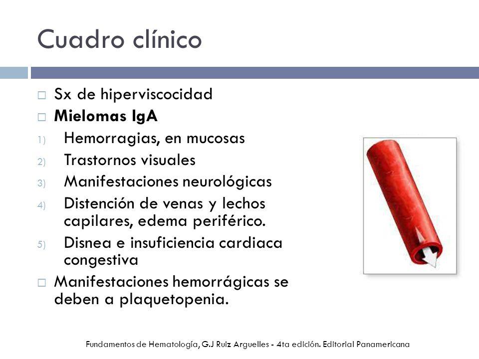 Cuadro clínico Sx de hiperviscocidad Mielomas IgA 1) Hemorragias, en mucosas 2) Trastornos visuales 3) Manifestaciones neurológicas 4) Distención de venas y lechos capilares, edema periférico.