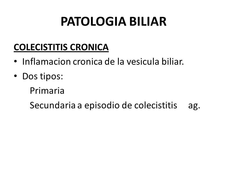 PATOLOGIA BILIAR COLECISTITIS CRONICA Inflamacion cronica de la vesicula biliar. Dos tipos: Primaria Secundaria a episodio de colecistitis ag.