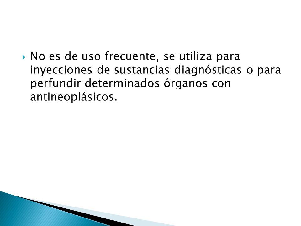 No es de uso frecuente, se utiliza para inyecciones de sustancias diagnósticas o para perfundir determinados órganos con antineoplásicos.