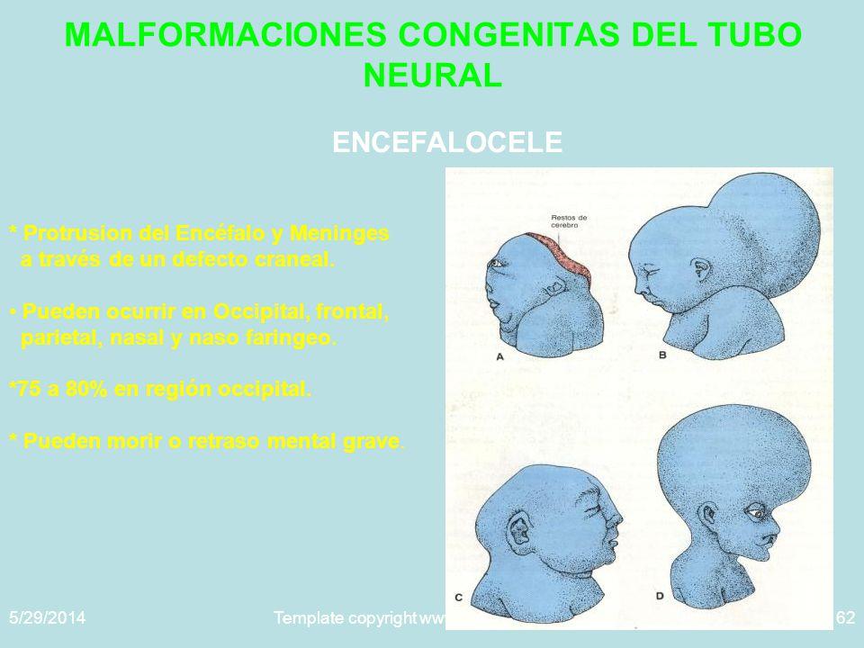 5/29/2014Template copyright www.brainybetty.com 200562 MALFORMACIONES CONGENITAS DEL TUBO NEURAL ENCEFALOCELE * Protrusion del Encéfalo y Meninges a través de un defecto craneal.