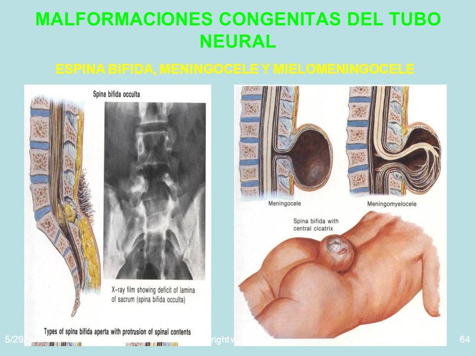 5/29/2014Template copyright www.brainybetty.com 200564 MALFORMACIONES CONGENITAS DEL TUBO NEURAL ESPINA BIFIDA, MENINGOCELE Y MIELOMENINGOCELE