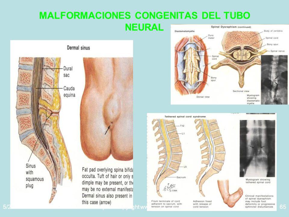 5/29/2014Template copyright www.brainybetty.com 200565 MALFORMACIONES CONGENITAS DEL TUBO NEURAL