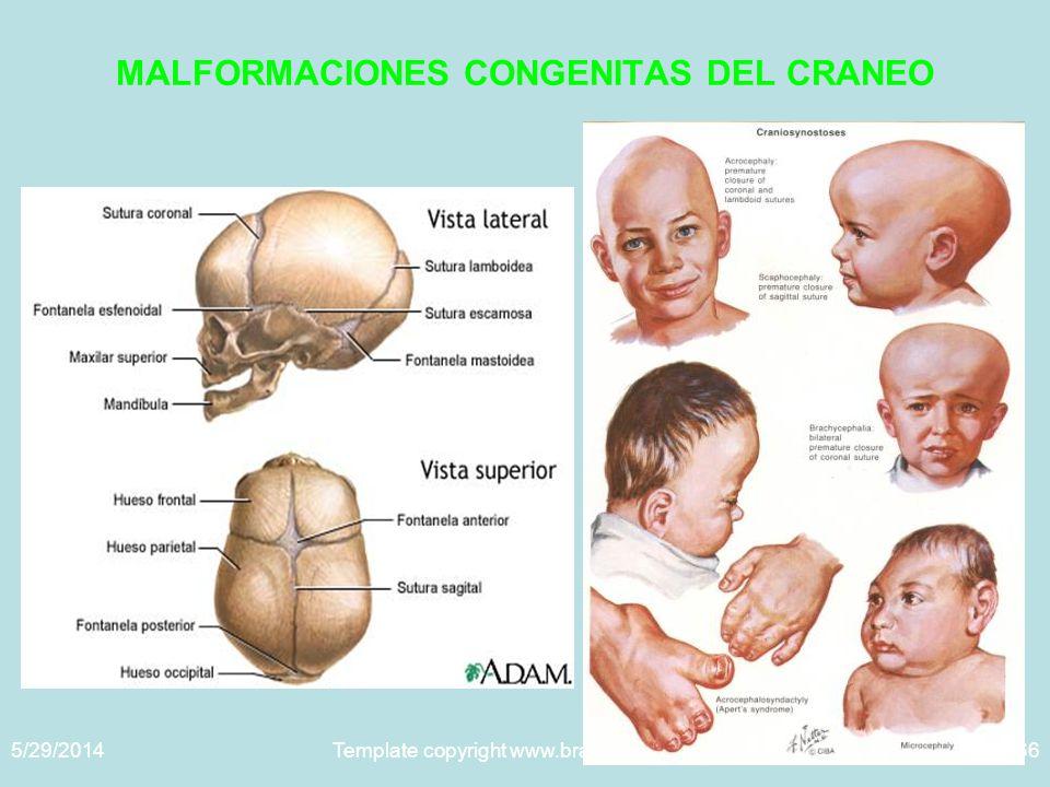 5/29/2014Template copyright www.brainybetty.com 200566 MALFORMACIONES CONGENITAS DEL CRANEO