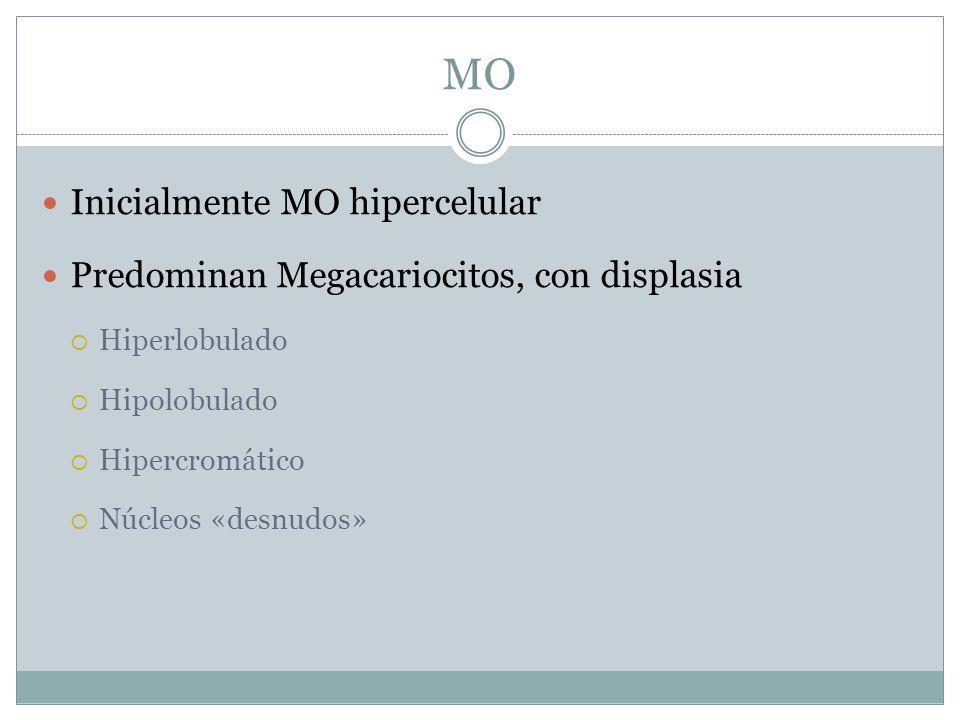 MO Inicialmente MO hipercelular Predominan Megacariocitos, con displasia Hiperlobulado Hipolobulado Hipercromático Núcleos «desnudos»