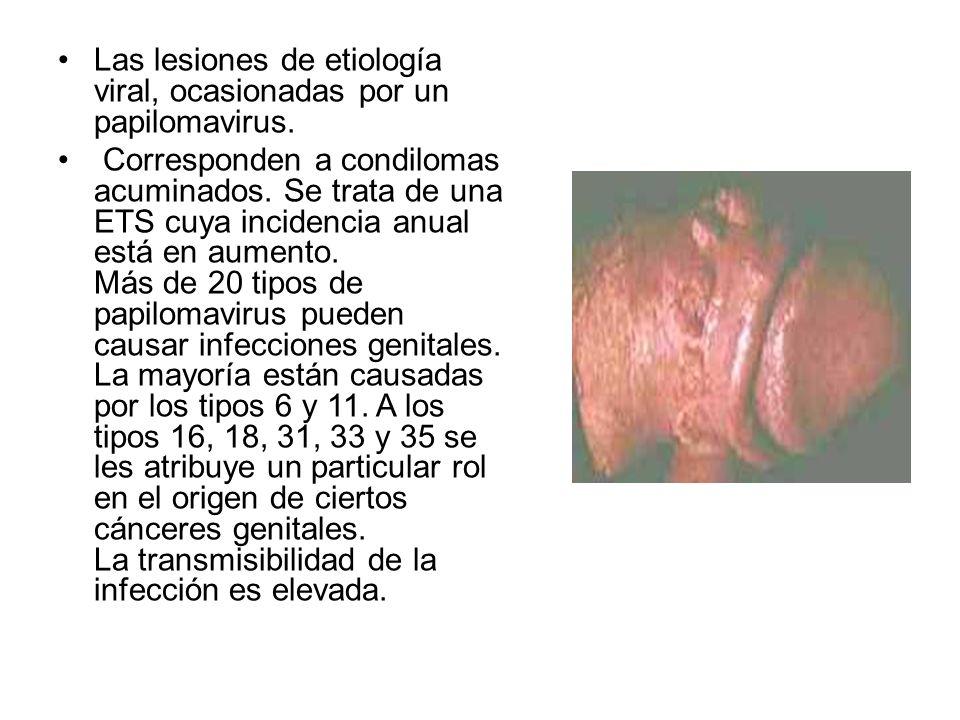 Las lesiones de etiología viral, ocasionadas por un papilomavirus. Corresponden a condilomas acuminados. Se trata de una ETS cuya incidencia anual est
