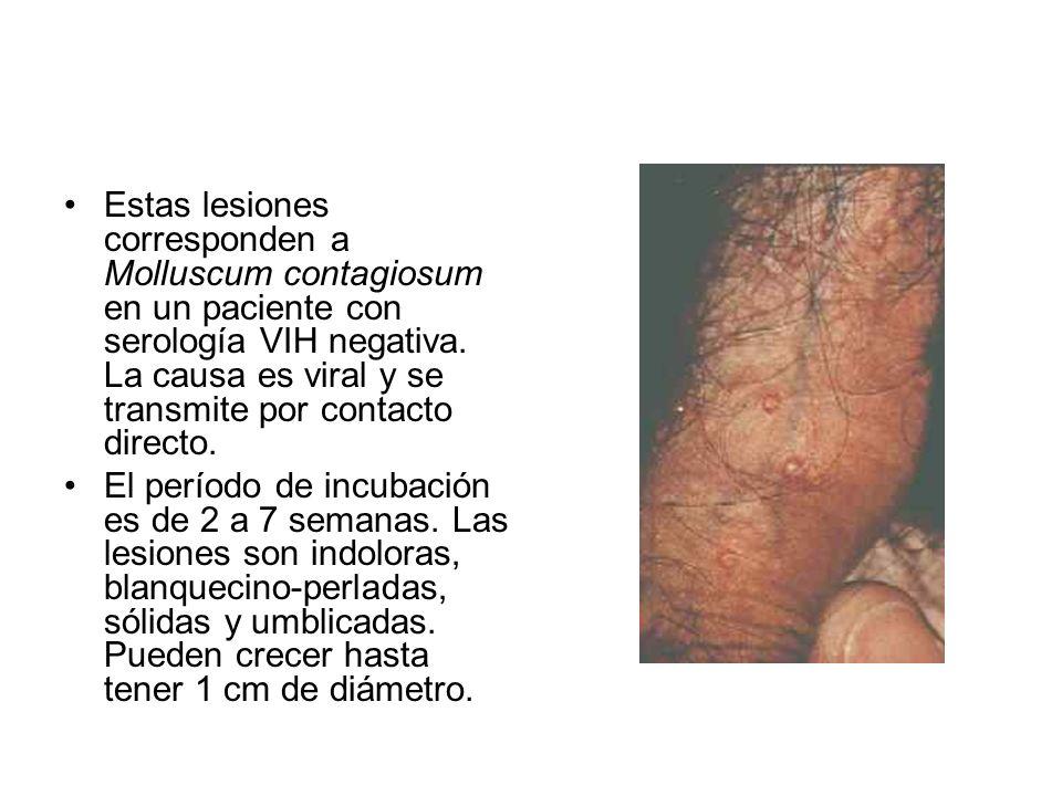 Estas lesiones corresponden a Molluscum contagiosum en un paciente con serología VIH negativa. La causa es viral y se transmite por contacto directo.