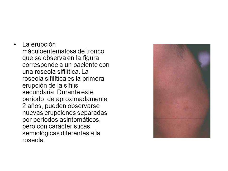 La erupción máculoeritematosa de tronco que se observa en la figura corresponde a un paciente con una roseola sifilítica. La roseola sifilítica es la