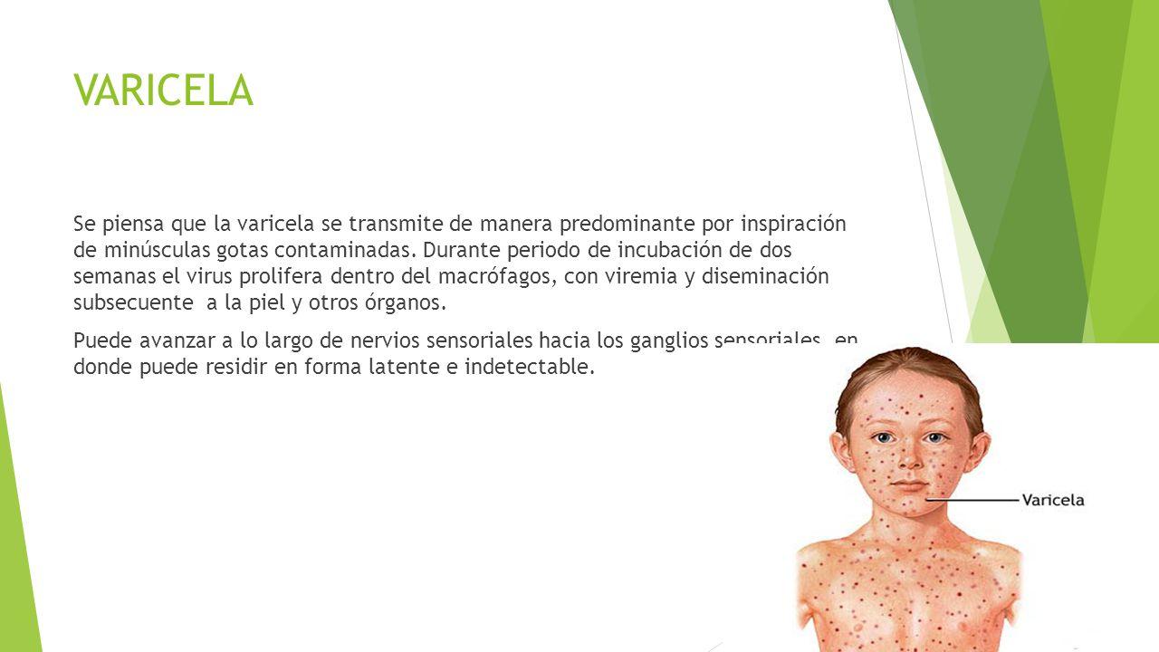VARICELA Se piensa que la varicela se transmite de manera predominante por inspiración de minúsculas gotas contaminadas. Durante periodo de incubación