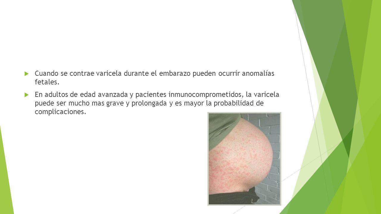  Cuando se contrae varicela durante el embarazo pueden ocurrir anomalías fetales.  En adultos de edad avanzada y pacientes inmunocomprometidos, la v