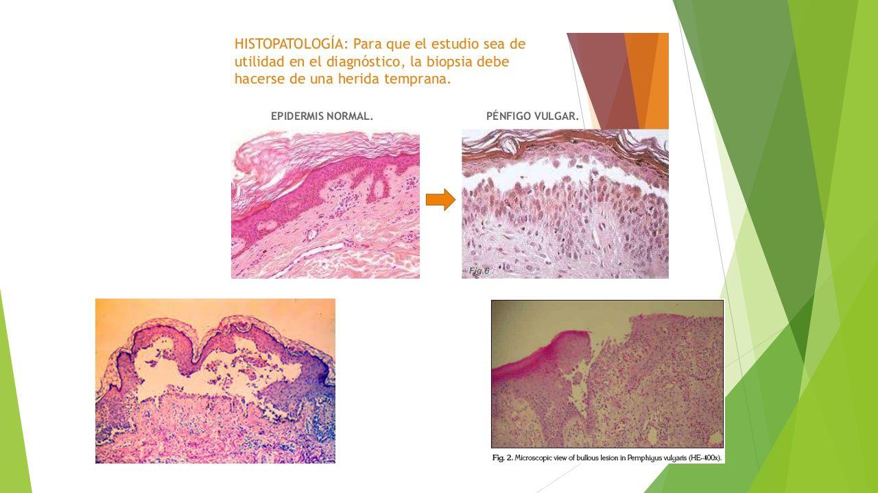 Diagnostico diferencial  Clínicamente debe diferenciarse de: pénfigoide bulboso y cicatrizal Eritema multiforme Bullas de liquen plano Dermatitis herpetiforme Estomatitis aftosa (cuando las lesiones son pequeñas) Pénfigo paraneoplasico Pénfigo vegetante