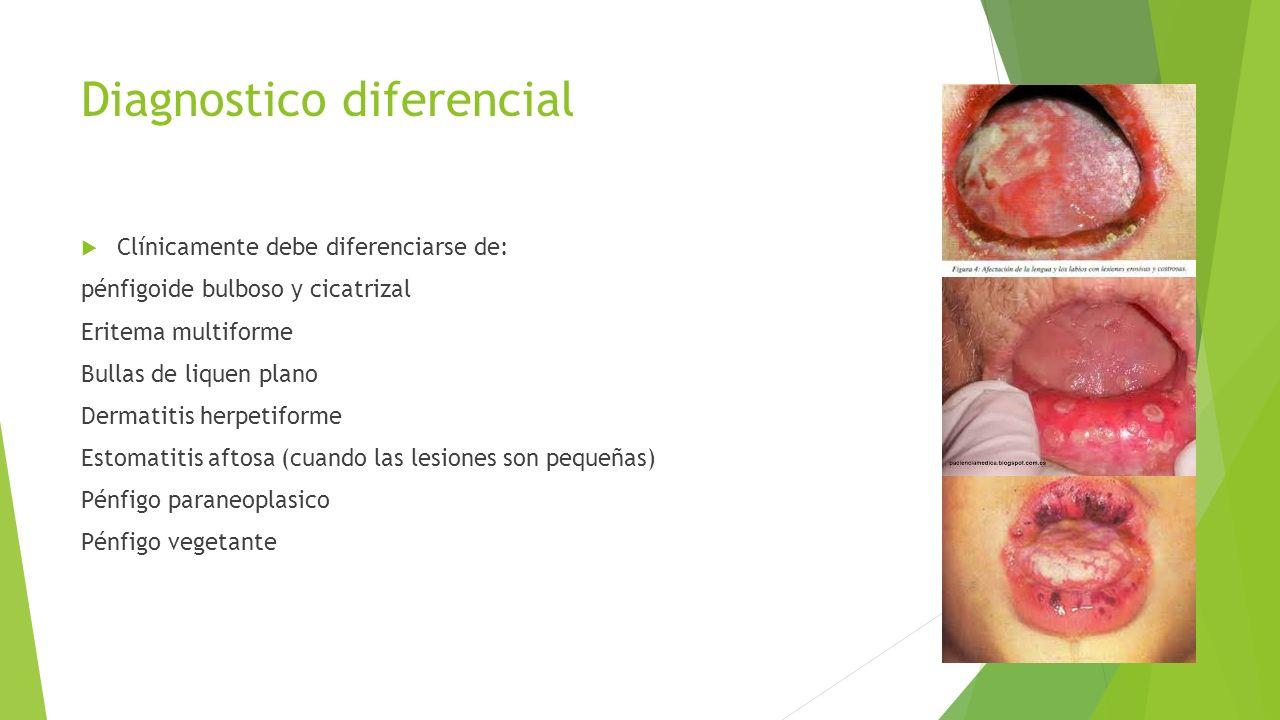 Diagnostico diferencial  Clínicamente debe diferenciarse de: pénfigoide bulboso y cicatrizal Eritema multiforme Bullas de liquen plano Dermatitis her