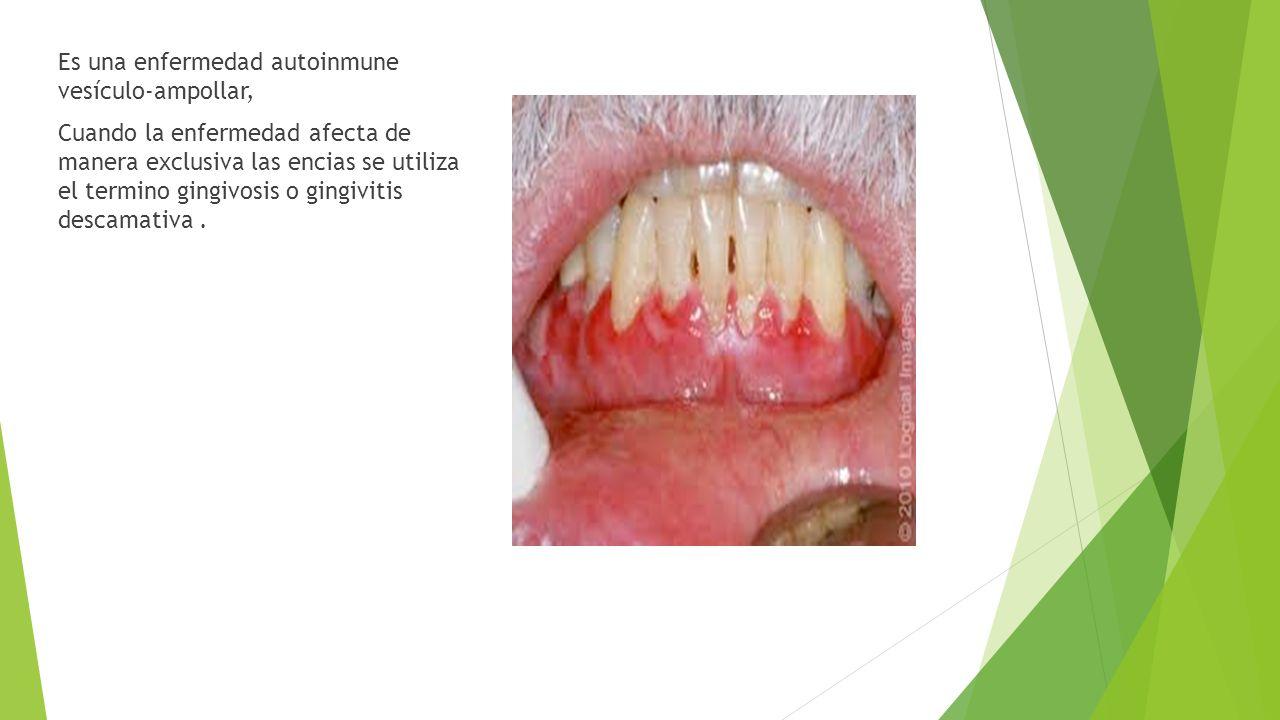 Es una enfermedad autoinmune vesículo-ampollar, Cuando la enfermedad afecta de manera exclusiva las encias se utiliza el termino gingivosis o gingivit