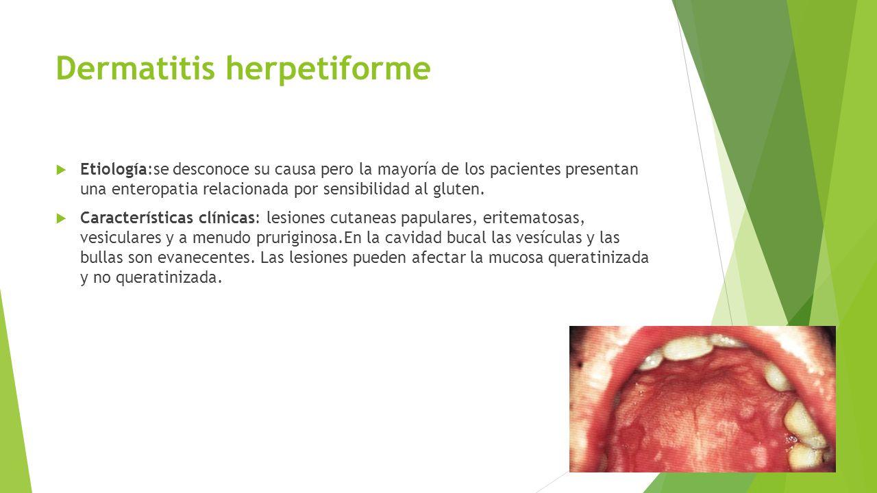 Dermatitis herpetiforme  Etiología:se desconoce su causa pero la mayoría de los pacientes presentan una enteropatia relacionada por sensibilidad al g