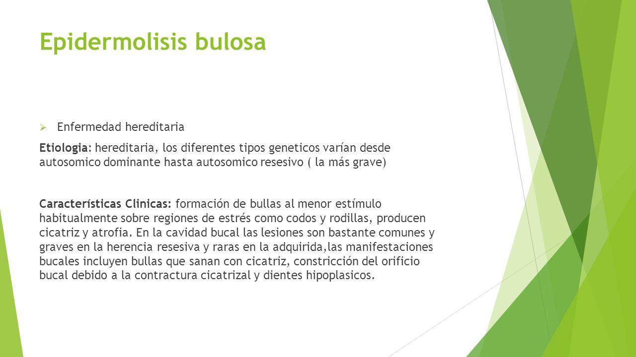 Epidermolisis bulosa  Enfermedad hereditaria Etiologia: hereditaria, los diferentes tipos geneticos varían desde autosomico dominante hasta autosomic
