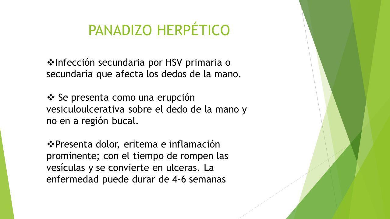 PANADIZO HERPÉTICO  Infección secundaria por HSV primaria o secundaria que afecta los dedos de la mano.  Se presenta como una erupción vesiculoulcer