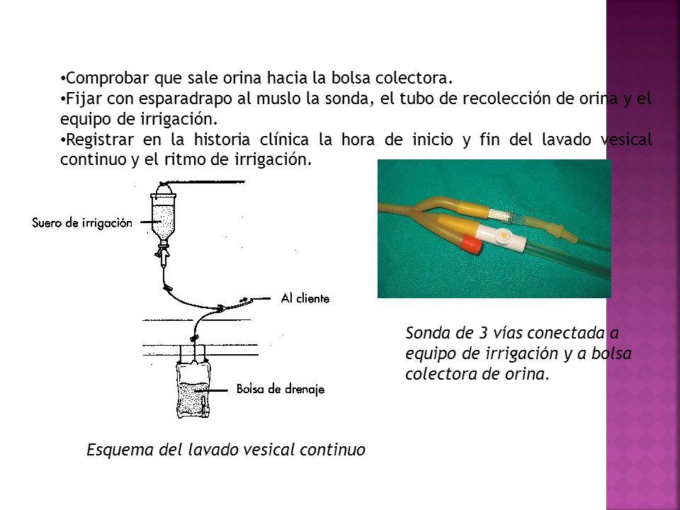 Comprobar que sale orina hacia la bolsa colectora. Fijar con esparadrapo al muslo la sonda, el tubo de recolección de orina y el equipo de irrigación.