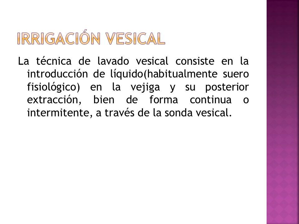 La técnica de lavado vesical consiste en la introducción de líquido(habitualmente suero fisiológico) en la vejiga y su posterior extracción, bien de f