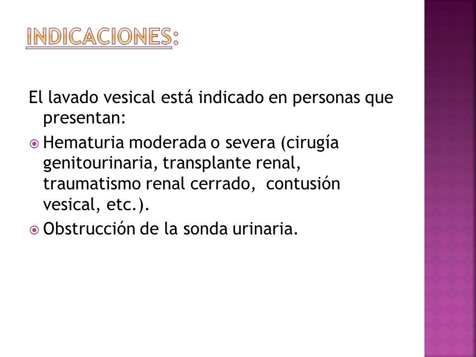 El lavado vesical está indicado en personas que presentan:  Hematuria moderada o severa (cirugía genitourinaria, transplante renal, traumatismo renal