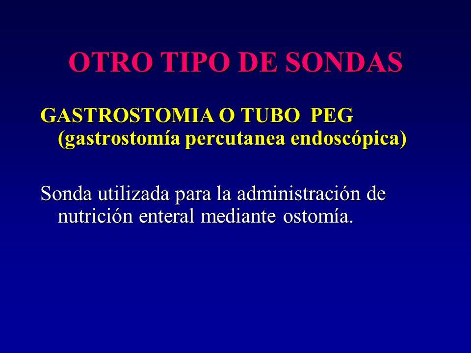 OTRO TIPO DE SONDAS GASTROSTOMIA O TUBO PEG (gastrostomía percutanea endoscópica) Sonda utilizada para la administración de nutrición enteral mediante