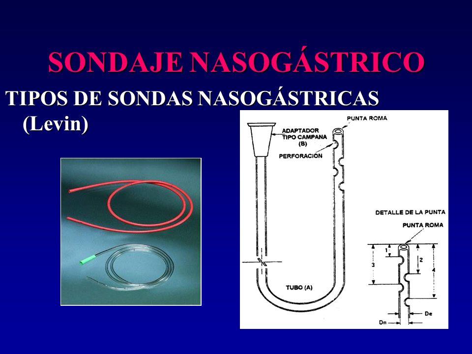 SONDAJE NASOGÁSTRICO TIPOS DE SONDAS NASOGÁSTRICAS (Levin)